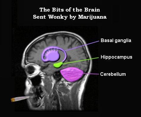 [2007_10_03_HIW_MarijuanaDiag.jpg]
