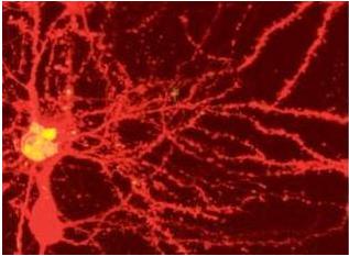 Neurona de ratón