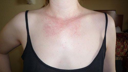 itchy chest rash #11