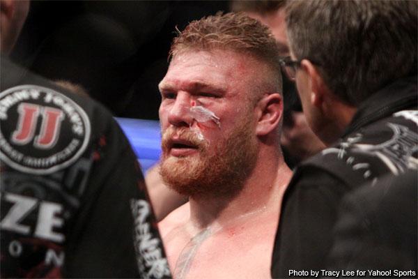 cara de Brock Lesnar luego de enfrentar a Cain Velasquez en UFC 121Ufc Brock Lesnar