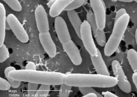Pictures Of Lactobacillus