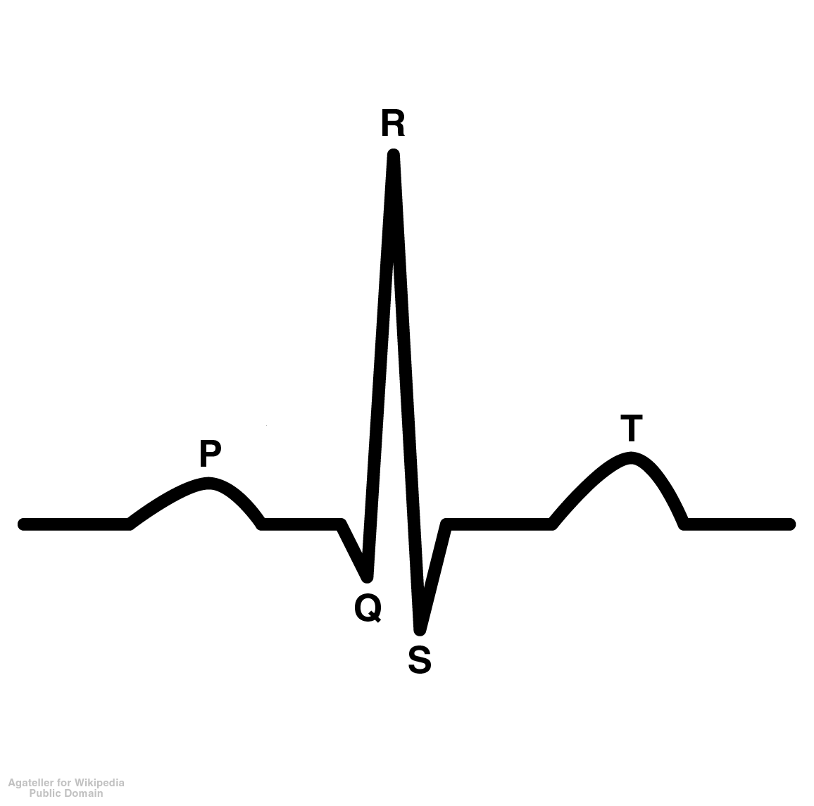 ECG Diagram