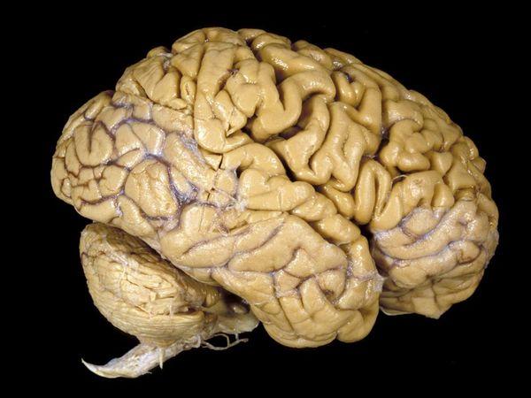 Vídeos e Imagens de Ciência - Página 4 Human-brain_1001_600x450