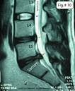 Herniation at the last spinal level, Disc Bulge at the level above that.