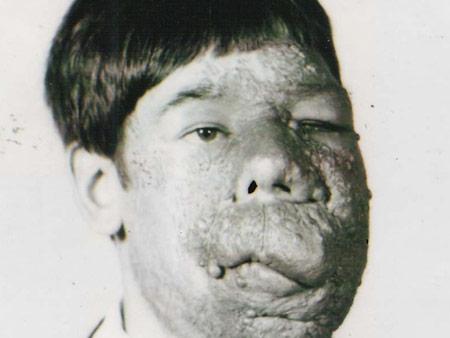 Facial tumor jose images 116