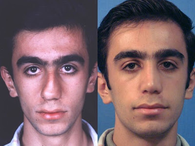 Interesting Before and After Nose Surgery Seen On  www.coolpicturegallery.us