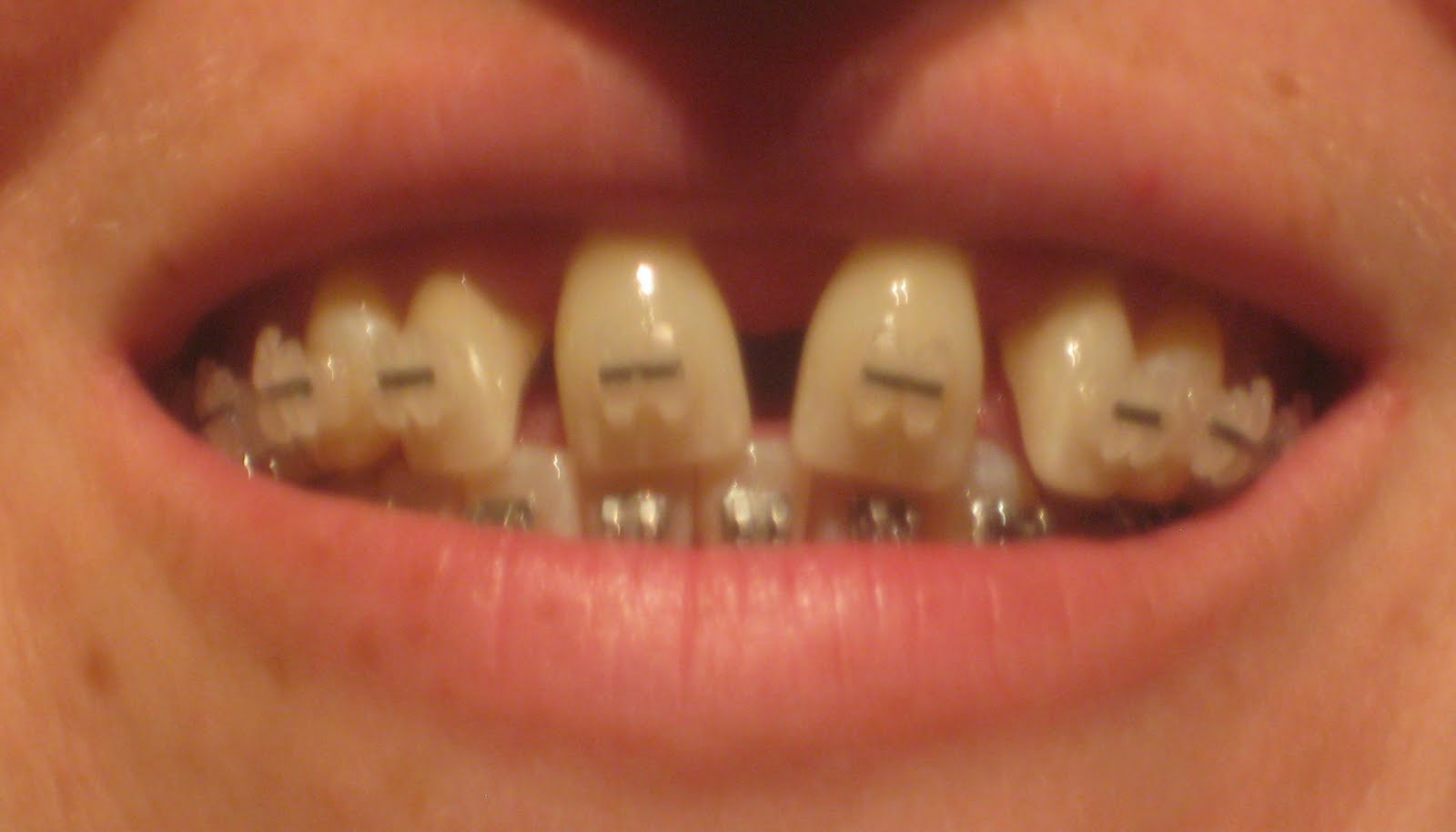 how to get healthy gums with braces fast