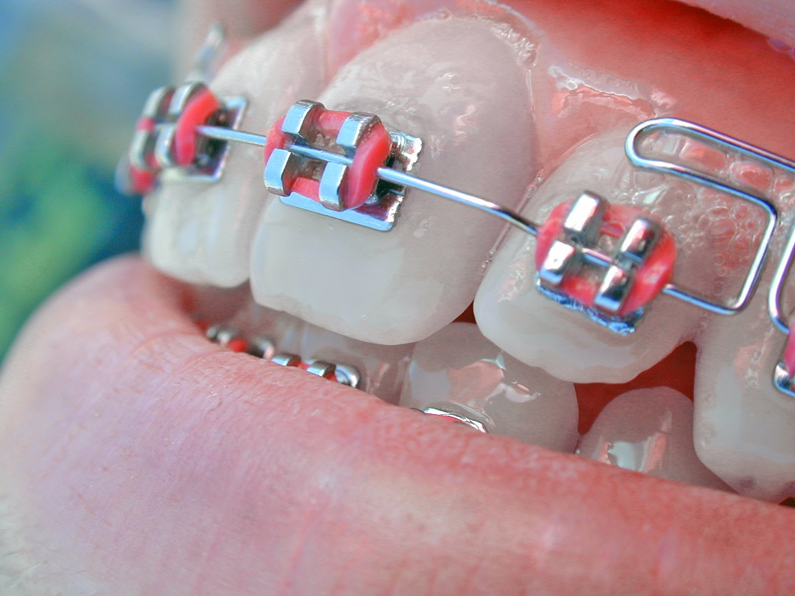 braces%2Barticle At the LCCH, we not only focus on theory and science of hypnotherapy but ...