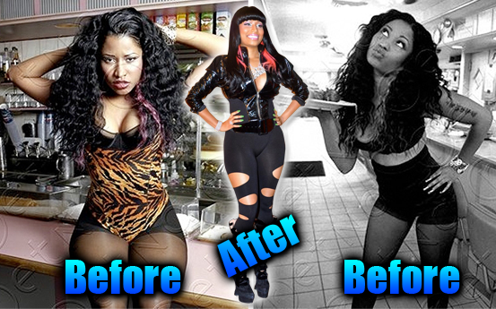 nicki minaj bum implants. Nicki Minaj before and after