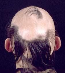Como aceptar las vitaminas para el crecimiento de los cabello las revocaciones