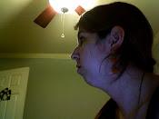 Profile Before