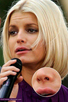 jessica simpson acne