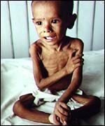 Desnutrición infantil en Argentina
