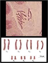 Cariotipo y Cariograma de Aloe vera