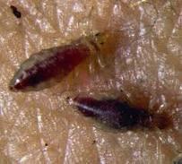 Que ungüentos ayudan a neyrodermite