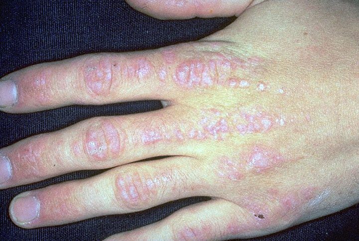 The Pulse  Dermatomyositis