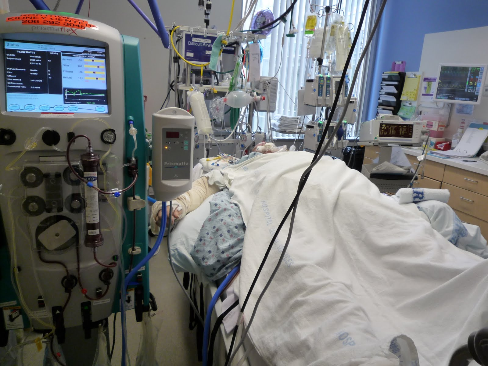 the ventilated patient in icu In the intensive care setting, monitored data relevant to the output, efficiency, and  reserve of the respiratory system alert the clinician to sudden untoward events,.