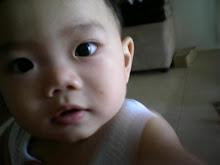 AkiD 10 MonthS