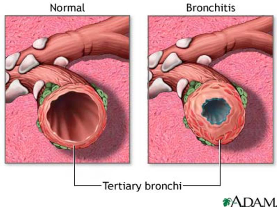 http://3.bp.blogspot.com/_yR797S0PE8Q/S7l18PebytI/AAAAAAAAAWA/JoXYHDtxUsc/s1600/Bronchitis.jpg