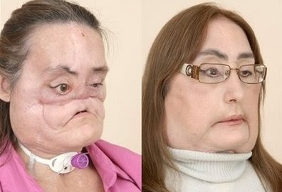Connie Culp First Face Transplant Patient in the U.S. (Photos)