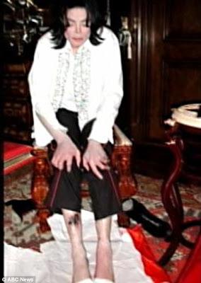 Michael Jackson's Drug-ravaged Legs