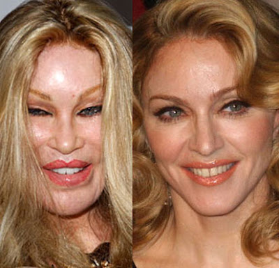 Real Catwoman Jocelyn Wildenstein and Madonna