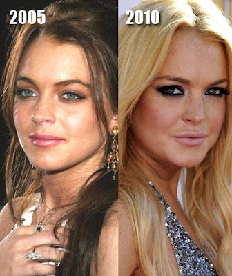 Linsday Lohan Before and After Photo