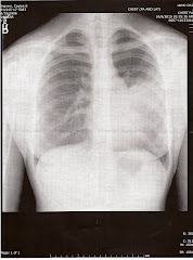Caylea's Lungs