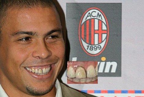 dentes Ronaldo