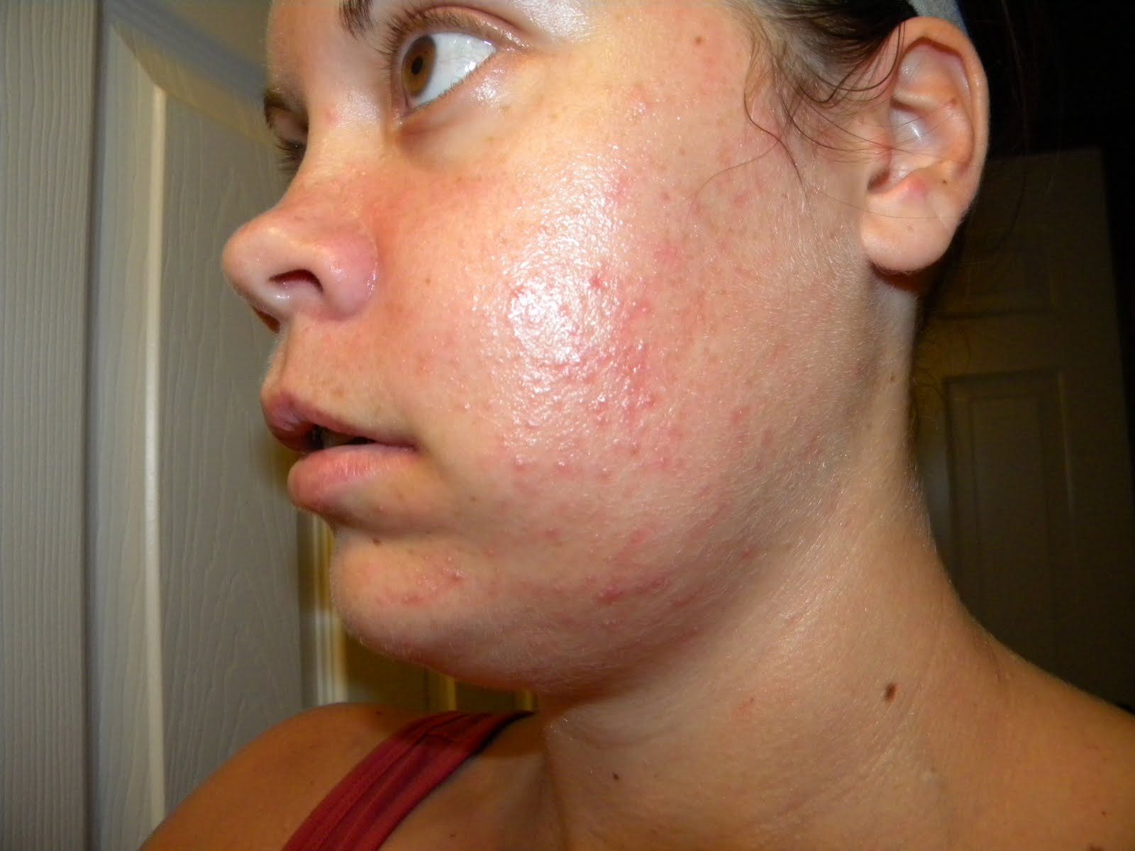 acne 3 13 powerful home remedies for acne in one study, 45 individuals with acne were given omega-3 fatty acid supplements containing both epa and dha daily.