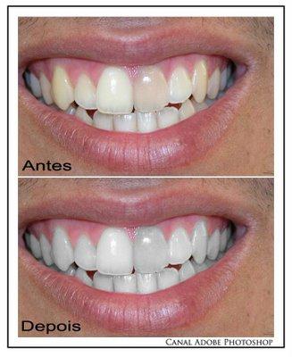 Boas Praticas Farmaceuticas E Melhor Clarear Os Dentes Em Casa Ou