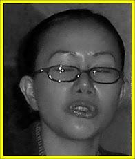 Hidung Baru Jadi Buatan Mount Elizabeth Hospital, Singapura
