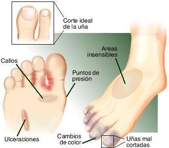 La fase inicial del hongo sobre el pulgar del pie