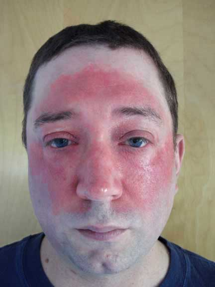 steroid cream for allergy rash