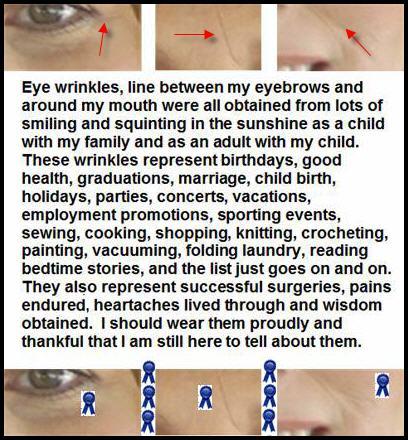 my wrinkles