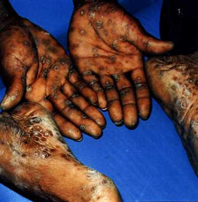 Beginilah Orang Yang Terinfeksi Penyakit Kelamin