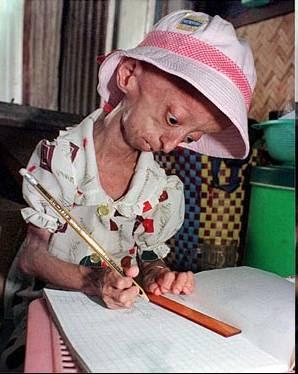 http://3.bp.blogspot.com/_zQj475e1CrI/StgsqcFHQfI/AAAAAAAAANE/k-EpKOaRS0M/s400/progeria.jpg
