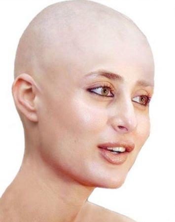 wajah wajah lucu para selebritis jika rambutnya dibotakin