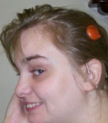 Kirsty's Cochlear Implant