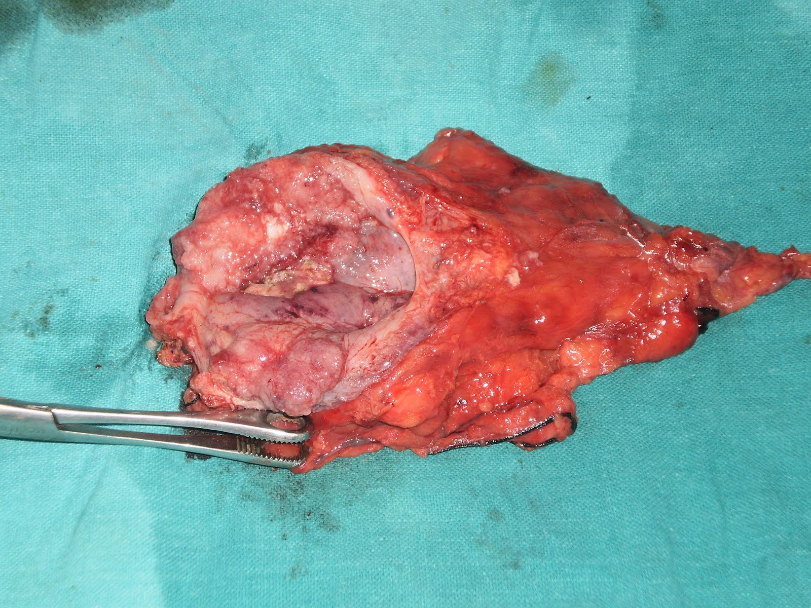 Displaying 17> Images For - Vaginal Reconstruction Cancer...