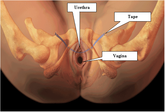 small vagina photos Married teacher Jennifer Smith 'sent breasts and vagina photos to.