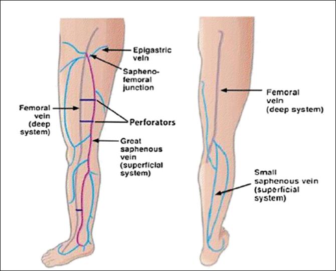 El mecanismo de la formación de la trombosis