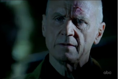 Lost Happily Ever After Charles Widmore Alan Dale cut forehead screencaps images photos pictures screengrabs captures
