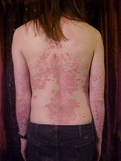 psoriasis traitement naturel efficace