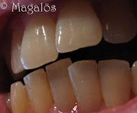 En närbild på tänder.