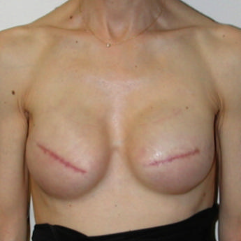 Images of breasts with no nipples