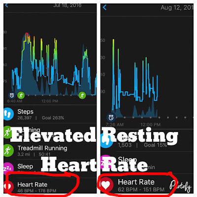 rest day overtraining stress elevated resting heart rate