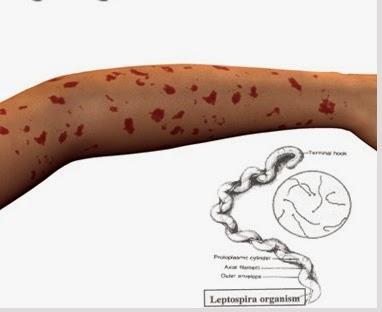 Terapi Non Farmakologi Penyakit Leptospirosis