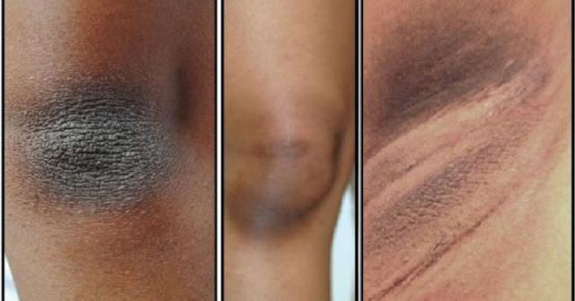 Home Remedies To Lighten Dark Armpits, Knees, Elbows And Neck