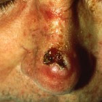 THE SKIN PART THAT ATTACKED BY SQUAMOUS CELL CARCINOMA